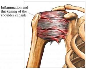 inflammation shoulder