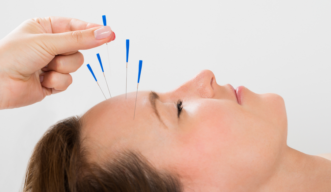 Headaches and Acupuncture